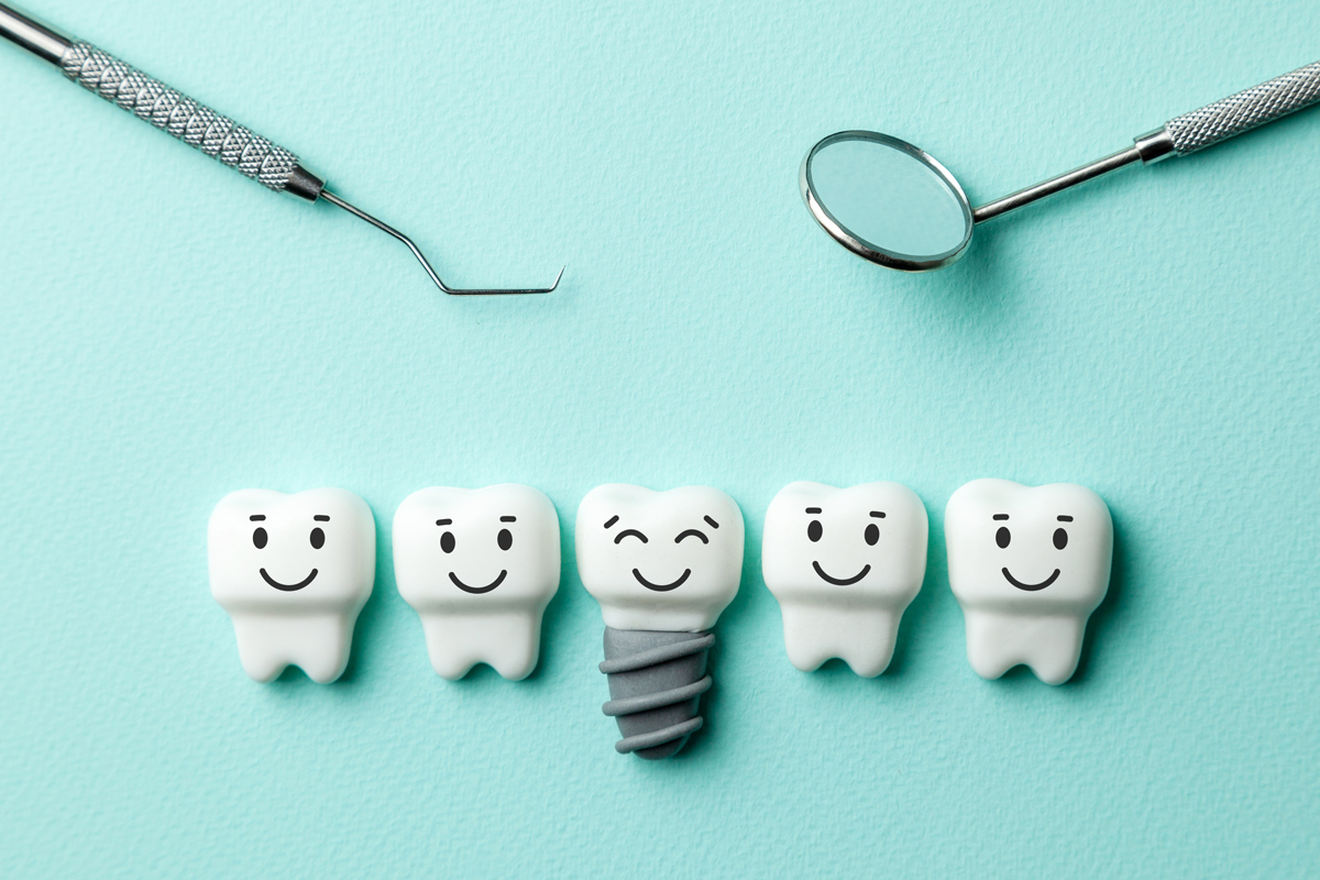 Modern Tooth Restoration Options