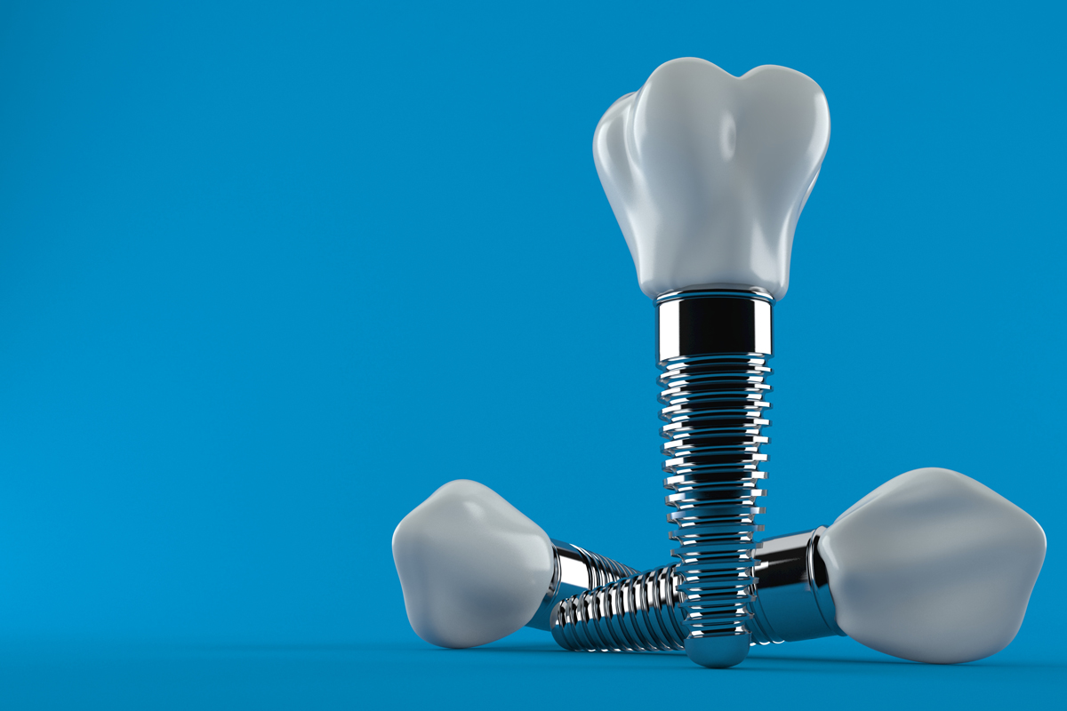 What Are They Saying About Dental Implants?